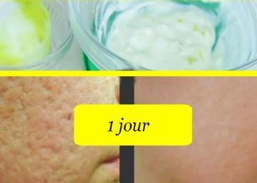 Des pores de peau resserrer pour une peau plus lisse que jamais, c'est ce qu'elle ajoute à son zeste de citron qui lui donne un teint radieux!